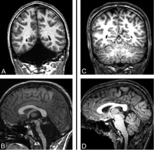 MR images of Jonathan Keleher's brain (A and B). The black diamond-shaped void in images A and B reveals Mr. Keleher's missing cerebellum. The images on the right demonstrate the presence of a cerebellum in the space in a normally developed brain. Photo credit: Massachusetts General Hospital, courtesy of Jeremy Schmahmann for use on NPR.org